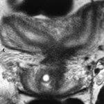 Isteroscopia