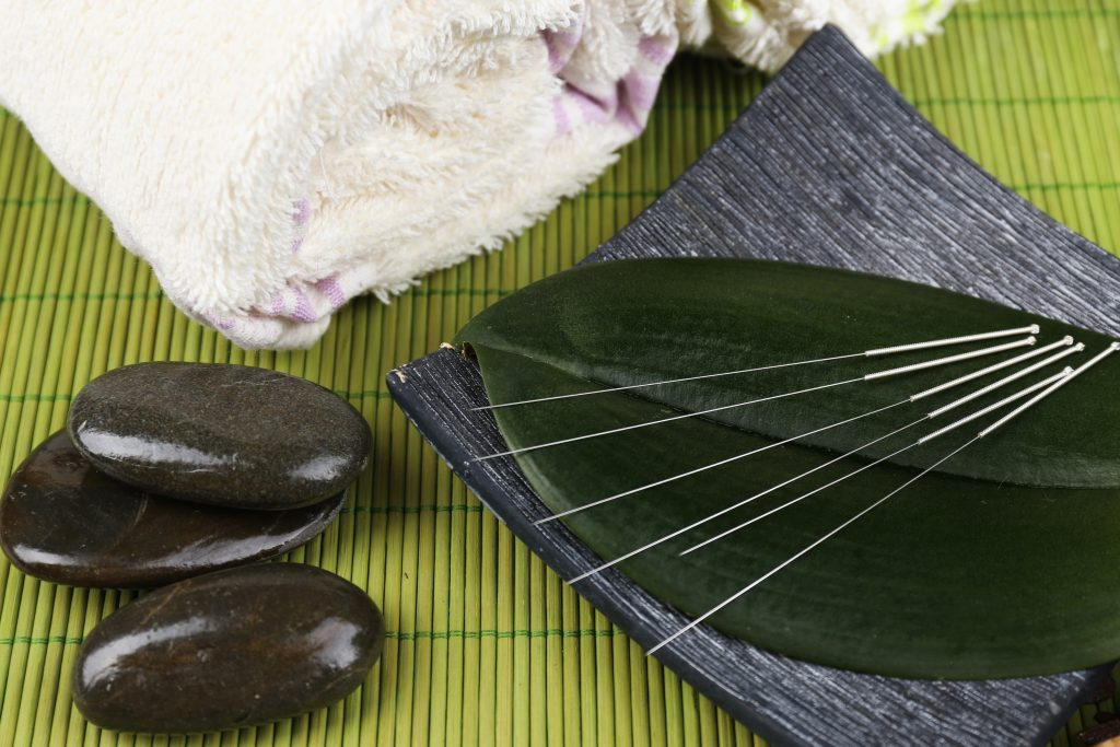 agopuntura e fertilità aghi