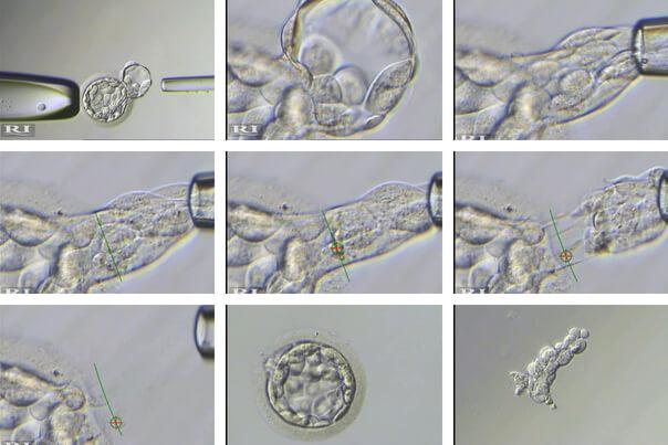 diagnosi genetica pre-impianto fasi